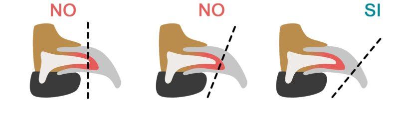 infografica su come tagliare le unghie al cane